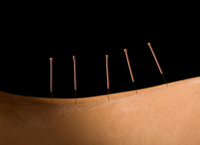 Back Acupuncture
